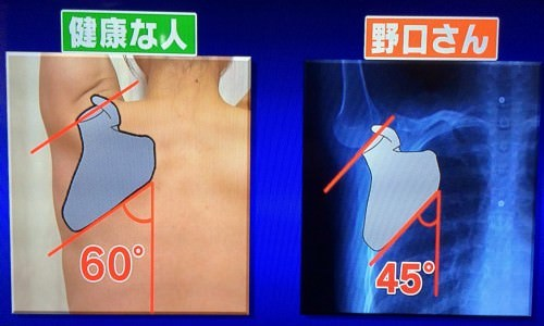 kenkokotukatakori01.jpg